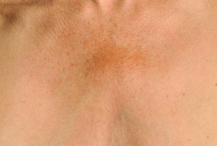 Comment se débarrasser des taches pigmentaires ?